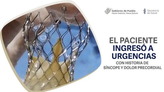 Con éxito, personal del Hospital del Sur realiza un implante valvular aórtico transcatéter